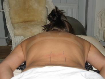 sportsakupunktur amager