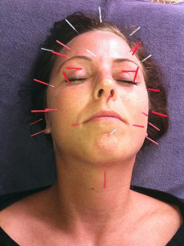 kosmetisk ansigtsakupunktur amager rynker